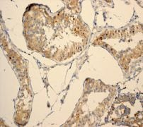 Immunohistochemistry (Formalin/PFA-fixed paraffin-embedded sections) - PHD1/prolyl hydroxylase antibody [EPR2] (ab108980)