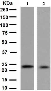 Western blot - MGMT antibody [EPR4398] (ab108989)