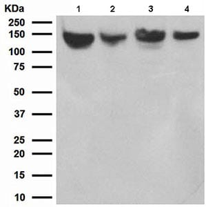 Western blot - Nicastrin antibody [EPR2574] (ab108993)