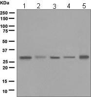 Western blot - NAT1 antibody [EPR3221(2)] (ab109114)