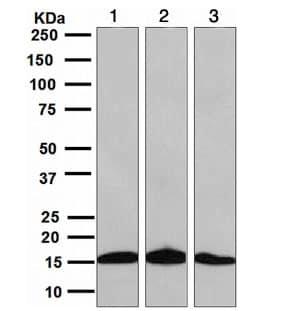 Western blot - Anti-SH2D1A/SAP antibody [EPR3168] (ab109120)
