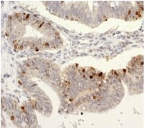 Immunohistochemistry (Formalin/PFA-fixed paraffin-embedded sections) - SATB1 antibody [EPR3951] (ab109122)