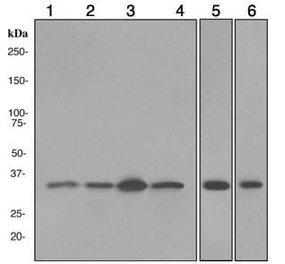 Western blot - PSMD14 antibody [EPR4257] (ab109123)