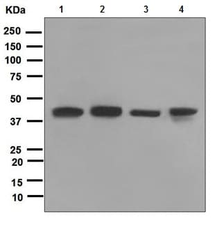 Western blot - TRAM2 antibody [EPR2658] (ab109176)