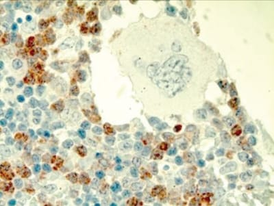 Immunohistochemistry (Formalin/PFA-fixed paraffin-embedded sections) - Anti-Sca1 / Ly6A/E antibody [EPR3355] (ab109211)