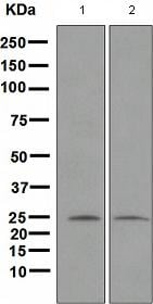 Western blot - Anti-Neurogenin 2 antibody [EPR4177] (ab109236)