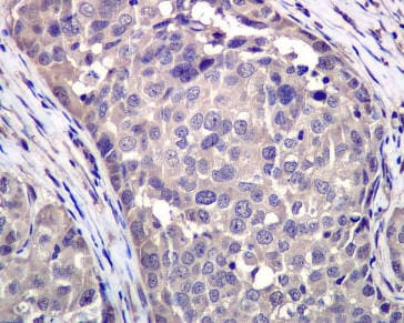Immunohistochemistry (Formalin/PFA-fixed paraffin-embedded sections) - VCP antibody [EPR3307(2)] (ab109240)