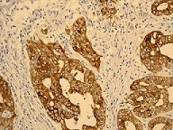 Immunohistochemistry (Formalin/PFA-fixed paraffin-embedded sections) - IGFBP2 antibody [EPR3380(2)] (ab109284)