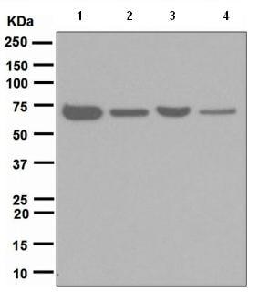 Western blot - TNF Receptor II antibody [EPR1653] (ab109322)