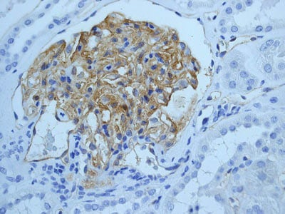 Immunohistochemistry (Formalin/PFA-fixed paraffin-embedded sections) - ICAM1 antibody [EPR4776] (ab109361)