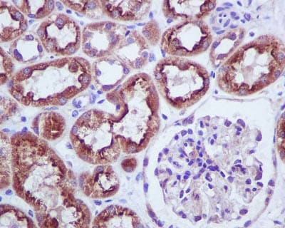 Immunohistochemistry (Formalin/PFA-fixed paraffin-embedded sections) - Anti-BNIP3 antibody [EPR4034] (ab109362)