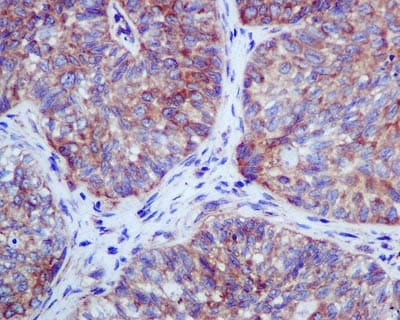 Immunohistochemistry (Formalin/PFA-fixed paraffin-embedded sections) - RENT1/hUPF1 antibody [EPR4681] (ab109363)