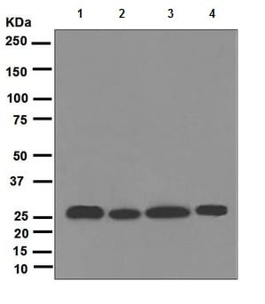Western blot - Anti-PSMA7 [EPR5837] antibody (ab109378)