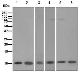 Western blot - S100 alpha antibody [EPR5251] (ab109384)