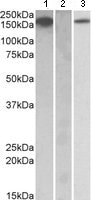 Western blot - MCSF Receptor antibody (ab109408)