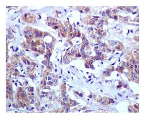 Immunohistochemistry (Formalin/PFA-fixed paraffin-embedded sections) - BNIP3L antibody [EPR4033] (ab109414)