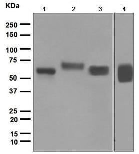 Western blot - Anti-GGT1 antibody [EPR5288] (ab109427)
