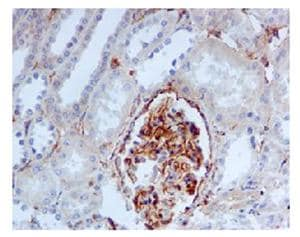 Immunohistochemistry (Formalin/PFA-fixed paraffin-embedded sections) - Fragilis antibody [EPR5242] (ab109429)