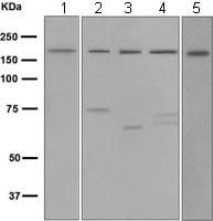 Western blot - WSTF antibody [EPR1703] (ab109439)