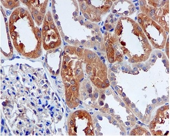Immunohistochemistry (Formalin/PFA-fixed paraffin-embedded sections) - Peroxiredoxin 1 antibody [EPR5433] (ab109498)