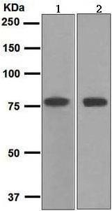Western blot - Transferrin antibody [EPR2932(2)] (ab109503)