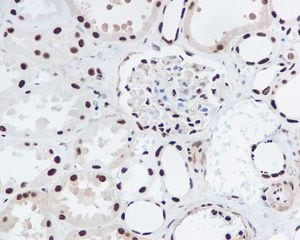 Immunohistochemistry (Formalin/PFA-fixed paraffin-embedded sections) - ING2 antibody [EPR4597] (ab109504)