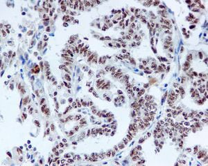 Immunohistochemistry (Formalin/PFA-fixed paraffin-embedded sections) - DDX50 antibody [EPR5273] (ab109515)