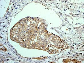 Immunohistochemistry (Formalin/PFA-fixed paraffin-embedded sections) - Galectin 8 antibody [EPR4857] (ab109519)