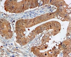 Immunohistochemistry (Formalin/PFA-fixed paraffin-embedded sections) - NOXA2/p67phox antibody [EPR5065] (ab109523)