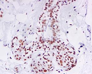Immunohistochemistry (Formalin/PFA-fixed paraffin-embedded sections) - Topoisomerase II beta antibody [EPR5377] (ab109524)