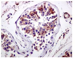Immunohistochemistry (Formalin/PFA-fixed paraffin-embedded sections) - CYB5R3 antibody [EPR3867] (ab109620)