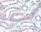 Immunohistochemistry (Formalin/PFA-fixed paraffin-embedded sections) - CRLF2 antibody (ab109626)