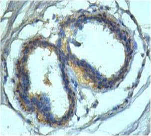 Immunohistochemistry (Formalin/PFA-fixed paraffin-embedded sections) - IL11RA antibody (ab109697)