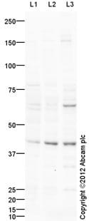 Western blot - Anti-IL3RA antibody (ab109707)