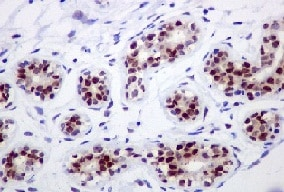 Immunohistochemistry (Formalin/PFA-fixed paraffin-embedded sections) - IKK alpha antibody [EPR464] (ab109749)