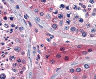 Immunohistochemistry (Formalin/PFA-fixed paraffin-embedded sections) - Apolipoprotein O antibody [2F1] (ab109757)