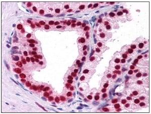 Immunohistochemistry (Formalin/PFA-fixed paraffin-embedded sections) - DDX5 antibody (ab109764)