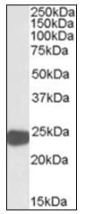 Western blot - Peroxiredoxin 1 antibody (ab109766)
