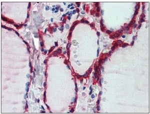 Immunohistochemistry (Formalin/PFA-fixed paraffin-embedded sections) - Peroxiredoxin 1 antibody (ab109766)