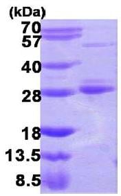 SDS-PAGE - Rab17 protein (His tag) (ab109833)