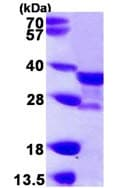 SDS-PAGE - NAT1 protein (ab109846)