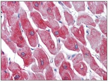 Immunohistochemistry (Formalin/PFA-fixed paraffin-embedded sections) - SERCA1 ATPase antibody [1B11] (ab109899)