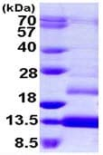 SDS-PAGE - Estrogen Inducible Protein pS2 (ab109944)
