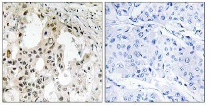 Immunohistochemistry (Formalin/PFA-fixed paraffin-embedded sections) - EIF3D antibody (ab109990)