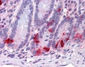 Immunohistochemistry (Formalin/PFA-fixed paraffin-embedded sections) - Chromogranin A antibody (ab109993)