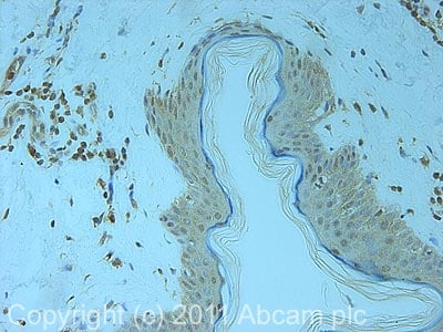Immunohistochemistry (Formalin/PFA-fixed paraffin-embedded sections)-PSMD7 antibody(ab11436)