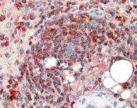Immunohistochemistry (Formalin/PFA-fixed paraffin-embedded sections) - ARPC2 antibody (ab11798)