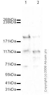 Western blot - C3 / C3a antibody [2898] (ab11874)