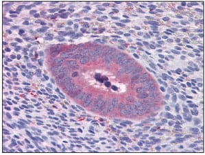Immunohistochemistry (Formalin/PFA-fixed paraffin-embedded sections) - GART antibody [4D6-1D5] (ab110002)