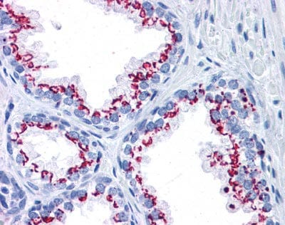 Immunohistochemistry (Formalin/PFA-fixed paraffin-embedded sections) - GOLPH2 antibody (ab110008)